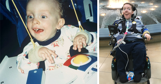 Pictures of Jack who has Spinal Muscular Atrophy. The Left image is of Jack when he was 2 and playing with his first computer. The Right Image is of Jack as an adult. Jack and Al Are Consultants on The Playability Initiative